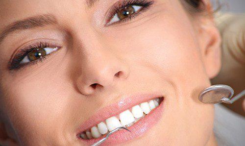 Les conseils pour un sourire parfait