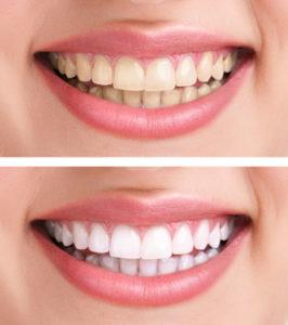Sourire terne vers sourire étincelant